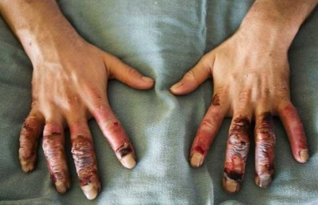 koudeletsel-handen
